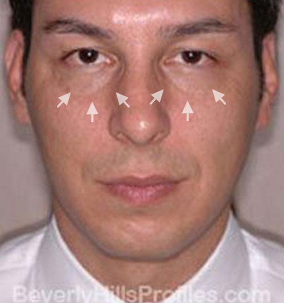 ANTI-AGING TREATMENTS IN MY 40S OR 50S - Before Treatment Photo - male, front view, patient 2