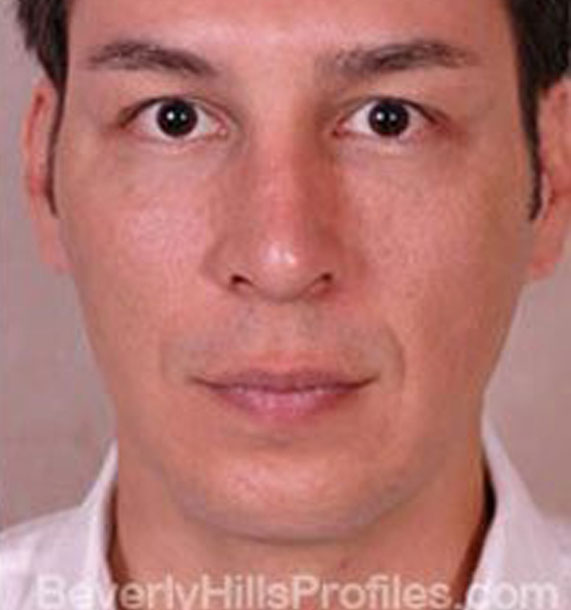 ANTI-AGING TREATMENTS IN MY 40S OR 50S - After Treatment Photo - male, front view, patient 2