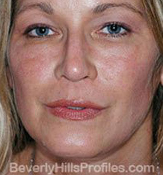 ANTI-AGING TREATMENTS IN MY 40S OR 50S - After Treatment Photo - female, front view, patient 3