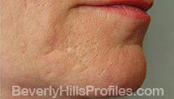 Injectable fillers: After treatment photo, oblique view, patient 1
