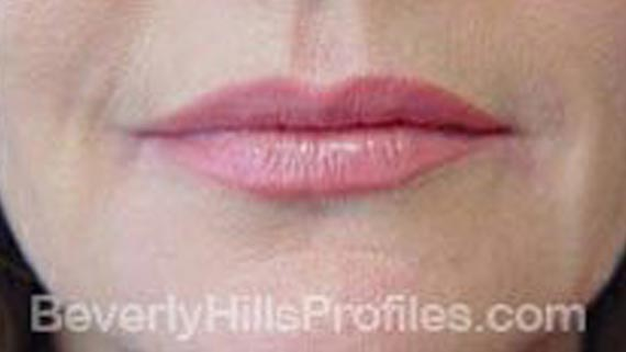 Injectable fillers: After treatment photo, front view, female patient 4