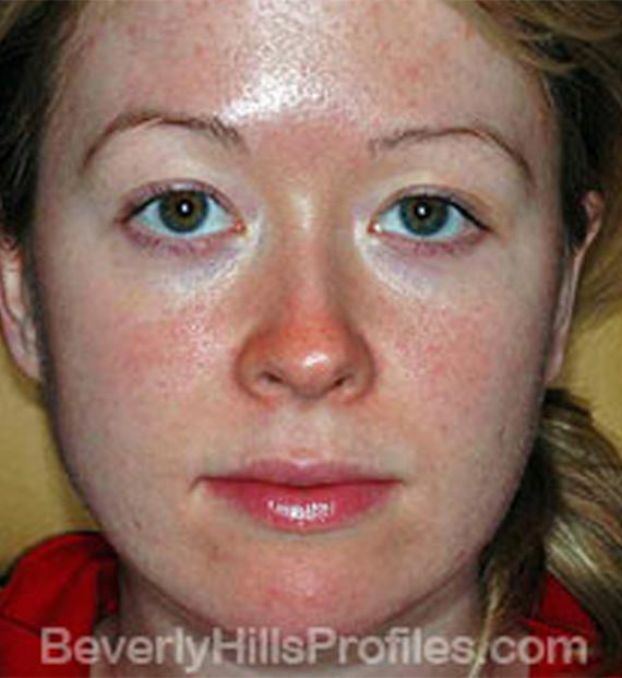 Intense Pulsed Light: Before treatment photo, front view, female patient 1