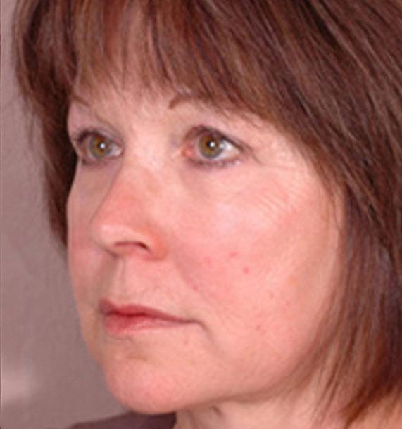 Intense Pulsed Light (IPL): After Treatment Photo - female, oblique view, patient 1
