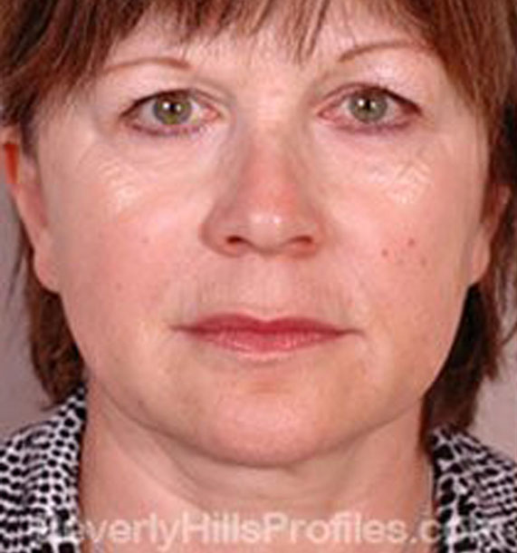 Intense Pulsed Light (IPL): Before Treatment Photo - female, front view, patient 1
