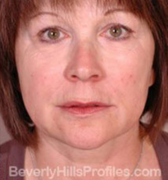 Intense Pulsed Light (IPL): After Treatment Photo - female, front view, patient 1