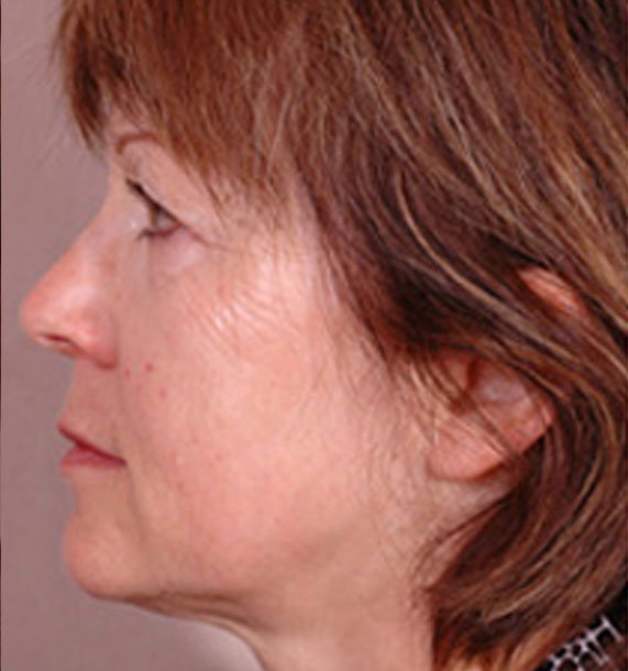 Intense Pulsed Light (IPL): Before Treatment Photo - female, left side view, patient 1