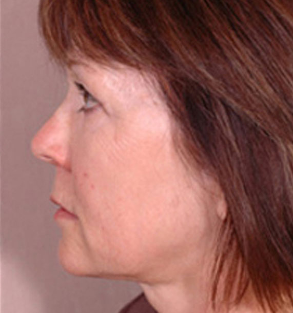 Intense Pulsed Light (IPL): After Treatment Photo - female, left side view, patient 1