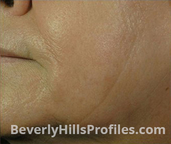 Intense Pulsed Light (IPL): After Treatment Photo - female (cheek), oblique view, patient 2