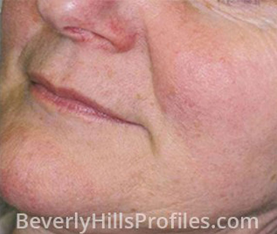 Intense Pulsed Light (IPL): After Treatment Photo - female (cheek), oblique view, patient 3