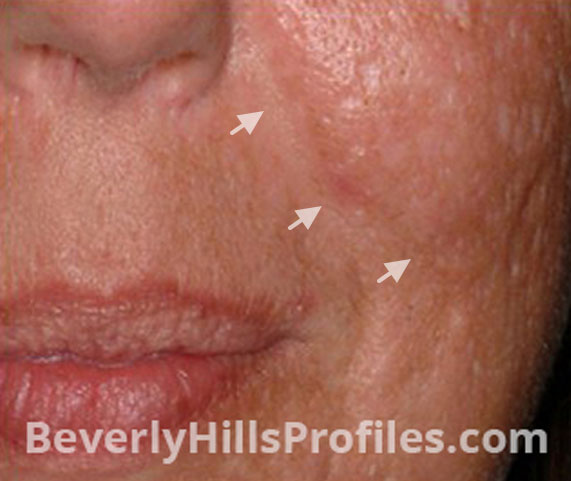 Intense Pulsed Light (IPL): Before Treatment Photo - female (cheek), oblique view, patient 4
