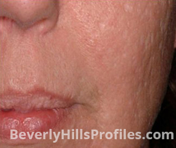 Intense Pulsed Light (IPL): After Treatment Photo - female (cheek), oblique view, patient 4