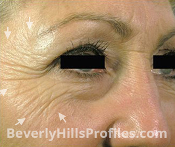 Intense Pulsed Light (IPL): Before Treatment Photo - female, right side view, patient 6