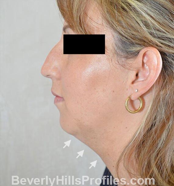 FaceLift, neck contouring surgery - Before Treatment Photo - female, left side view, patient 1