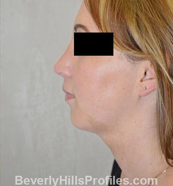 FaceLift, neck contouring surgery - After Treatment Photo - female, left side view, patient 1