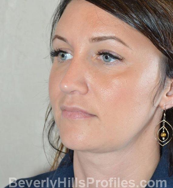 FaceLift, neck contouring surgery - After Treatment Photo - female, left side oblique view, patient 2