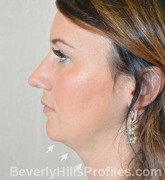 FaceLift, neck contouring surgery - Before Treatment Photo - female, left side view, patient 2