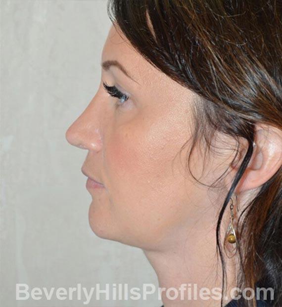 FaceLift, neck contouring surgery - After Treatment Photo - female, left side view, patient 2