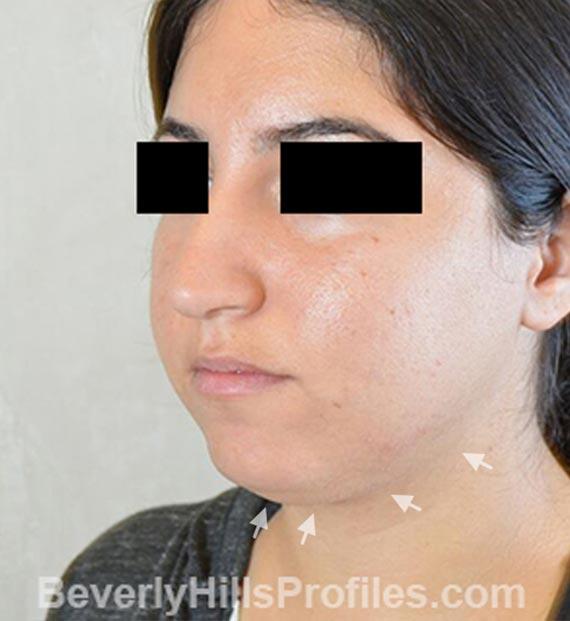 FaceLift, neck contouring surgery - Before Treatment Photo - female, left side oblique view, patient 4