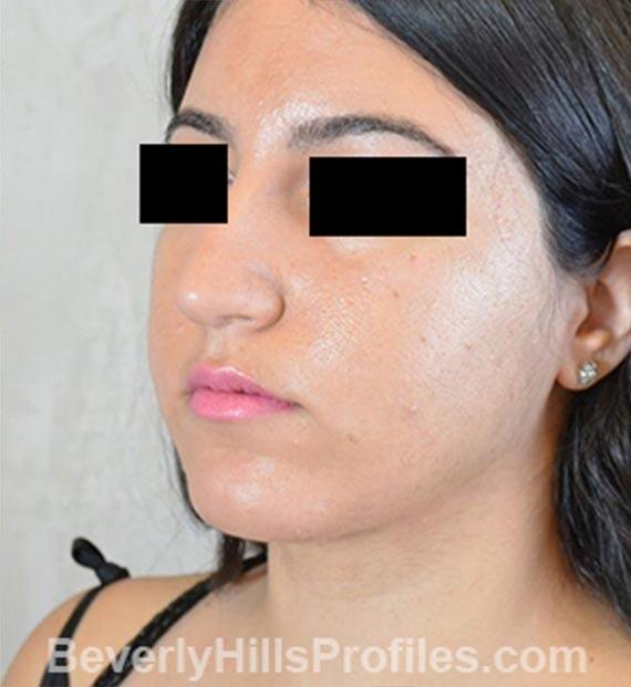 FaceLift, neck contouring surgery - After Treatment Photo - female, left side oblique view, patient 4