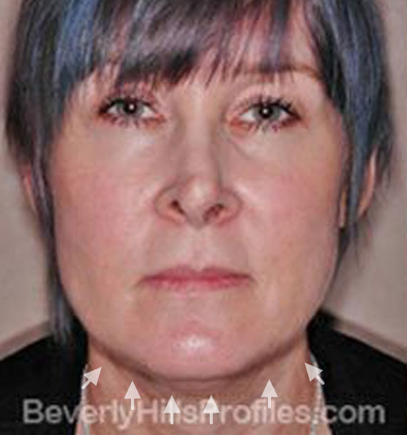 ANTI-AGING TREATMENTS IN MY 40S OR 50S - Before Treatment Photo - female, neck liposuction, front view, patient 5