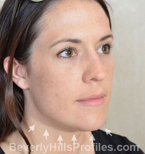 ANTI-AGING TREATMENTS IN MY 40S OR 50S - Before Treatment Photo - female, neck liposuction, oblique view, patient 9