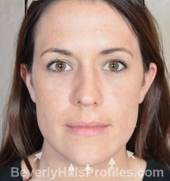 ANTI-AGING TREATMENTS IN MY 40S OR 50S - Before Treatment Photo - female, neck liposuction, front view, patient 9