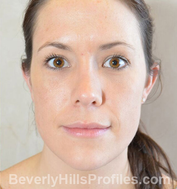 ANTI-AGING TREATMENTS IN MY 40S OR 50S - After Treatment Photo - female, neck liposuction,front view, patient 9