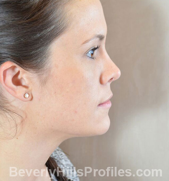 ANTI-AGING TREATMENTS IN MY 40S OR 50S - After Treatment Photo - female, neck liposuction, right side view, patient 9