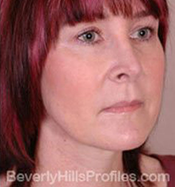 ANTI-AGING TREATMENTS IN MY 40S OR 50S - After Treatment Photo - female, neck liposuction, oblique view, patient 5