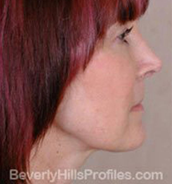 ANTI-AGING TREATMENTS IN MY 40S OR 50S - After Treatment Photo - female, neck liposuction, right side view, patient 5
