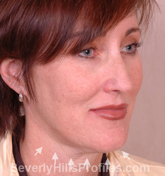 ANTI-AGING TREATMENTS IN MY 40S OR 50S - Before Treatment Photo - female, neck liposuction, oblique view, patient 6