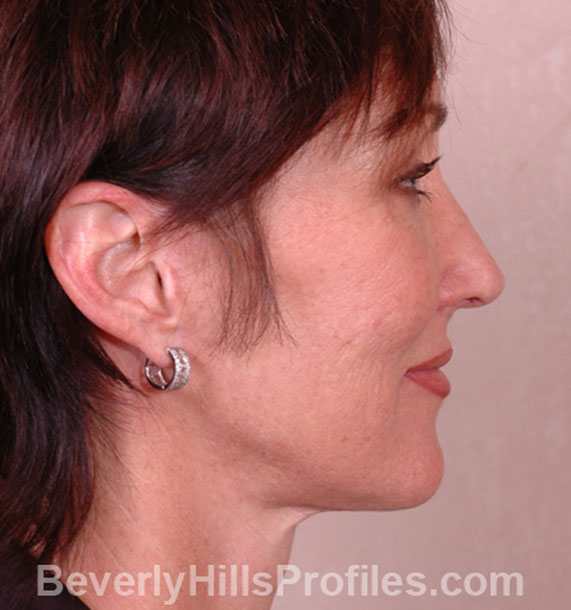 ANTI-AGING TREATMENTS IN MY 40S OR 50S - After Treatment Photo - female, neck liposuction, right side view, patient 6