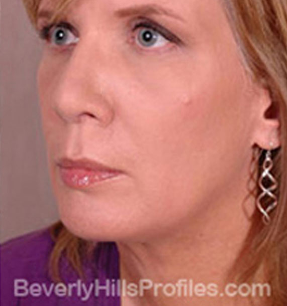 ANTI-AGING TREATMENTS IN MY 40S OR 50S - After Treatment Photo - female, neck liposuction, oblique view, patient 7