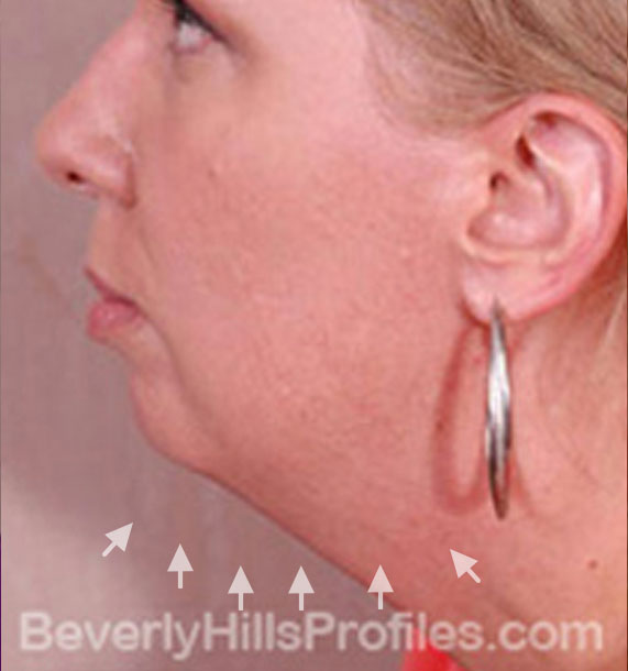 ANTI-AGING TREATMENTS IN MY 40S OR 50S - Before Treatment Photo - female, neck liposuction, left side view, patient 7