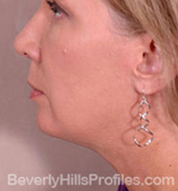 ANTI-AGING TREATMENTS IN MY 40S OR 50S - After Treatment Photo - female, neck liposuction, left side view, patient 7