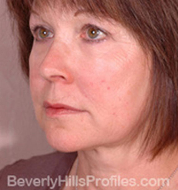 ANTI-AGING TREATMENTS IN MY 40S OR 50S - After Treatment Photo - female, neck liposuction, oblique view, patient 8