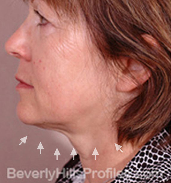 ANTI-AGING TREATMENTS IN MY 40S OR 50S - Before Treatment Photo - female, neck liposuction, left side view, patient 8