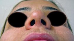 before Open Rhinoplasty