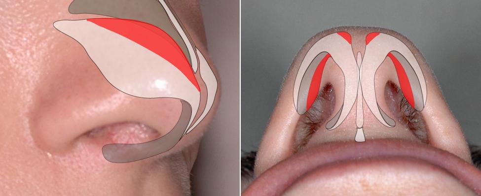 Cephalic trim technique for narrowing a wide tip