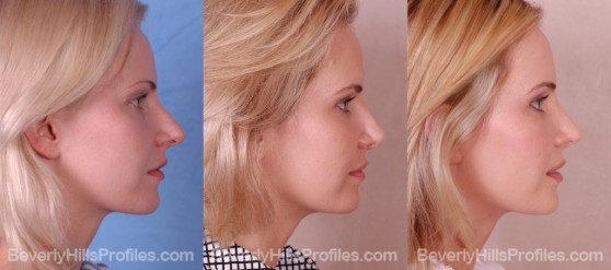three photos before and after Rhinoplasty - profile view