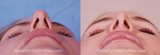 before and 1 year after open rhinoplasty for refinement of a bulbous tip