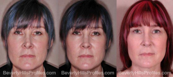 Female before and after revision rhinoplasty surgery front