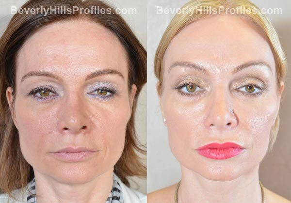 Female patient before and after Facelift - front view