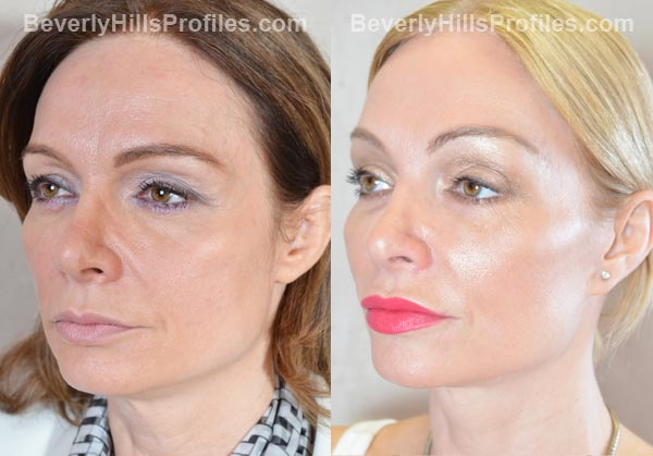 Female patient before and after Facelift - oblique view