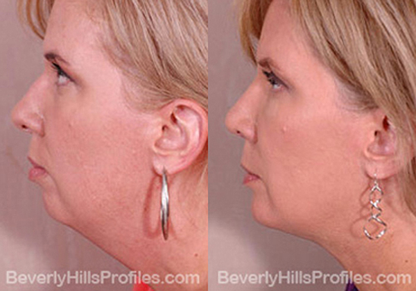 side view - Female patient before and after Facelift