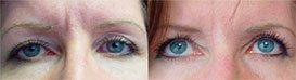 Photos Female patient before and after Botox