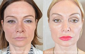 Photo Female Patient before and after Browlift