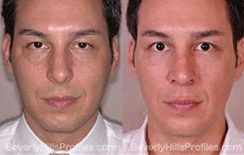 Photos Male patient before and after Fat Transfer