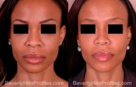 Photo Female Patient before and after After African American Rhinoplasty