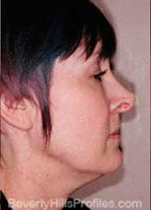 Female face, before Neck lift treatment, neck, right side view, patient 1